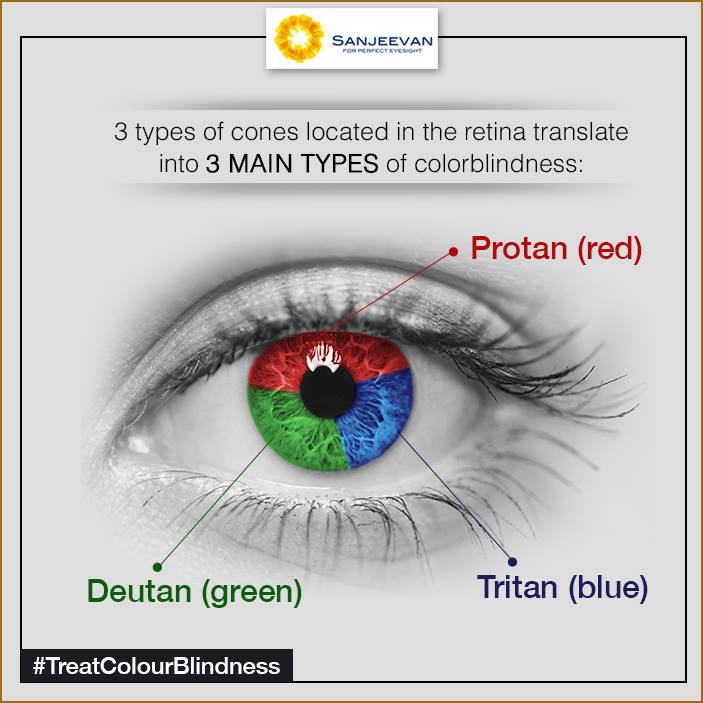 Colour Blindness Treatment In India Sanjeevan